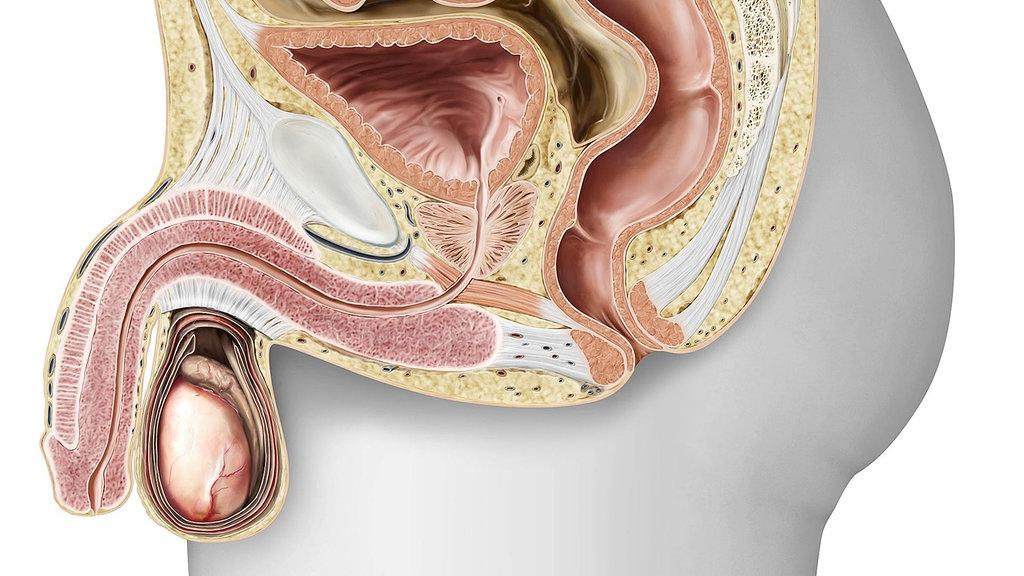 Jakie są objawy ostrego zapalenia prostaty?