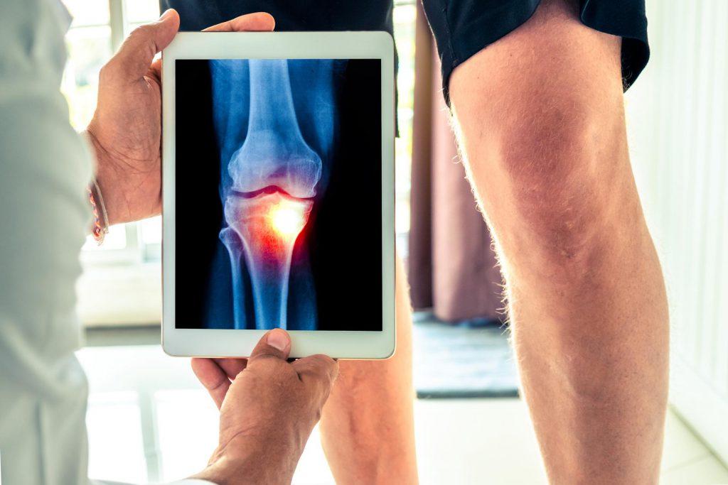 Choroba-zwyrodnieniowa-stawow Dlaczego pojawiają się bóle stawów?